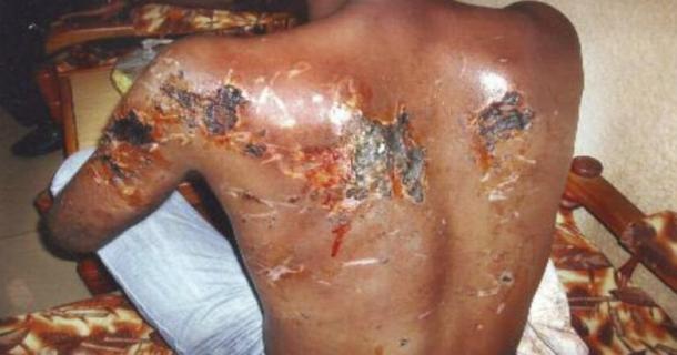 Dos brûlé d'une victime des FRCI